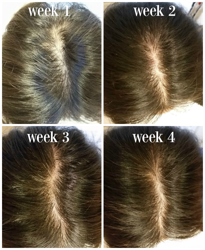 Nioxin 30 Day Hair Challenge Tackling Midlife Hair Thinning